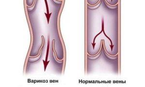 клапаны сосудов при варикозе