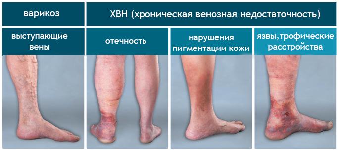 разница между варикозом и хвн