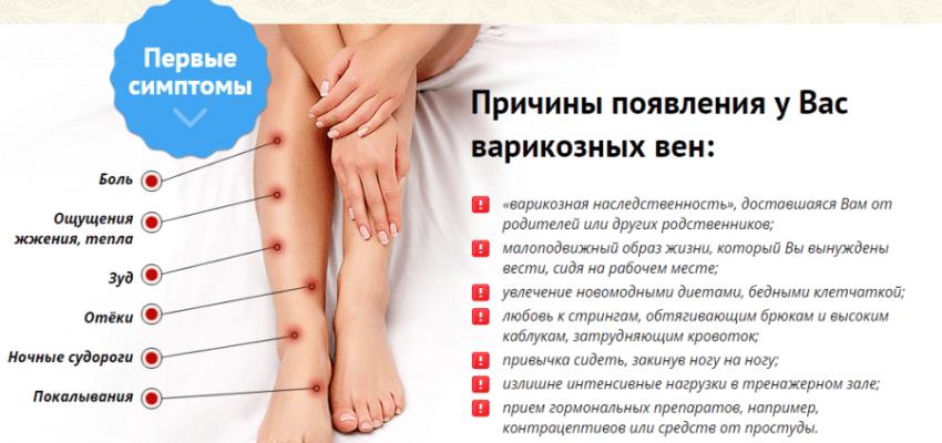 симптомы и причины варикоза