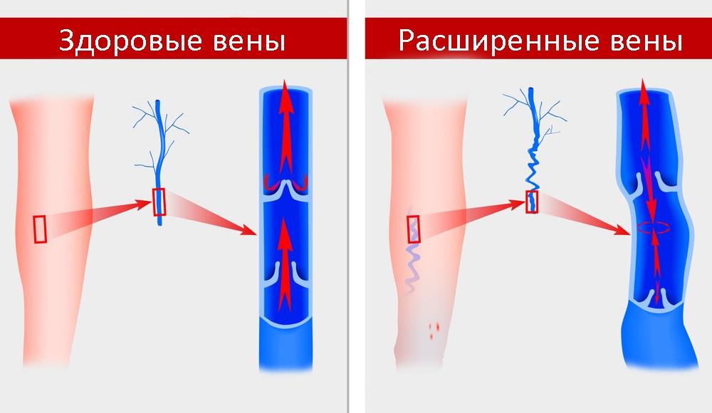 сравнение расширенных и здоровых вен