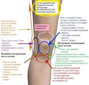 причины болей под коленом