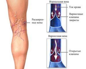 причины болей в венах под коленкой