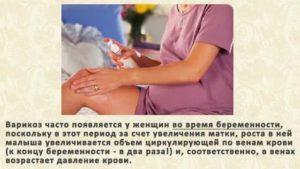 причины варикоза при беременности