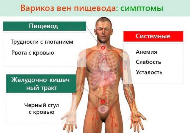 симптомы варикоза вен пищевода