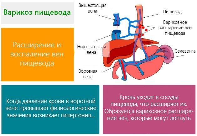 варикоз вен пищевода схема
