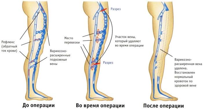 до и после комбинированной флебэктомии