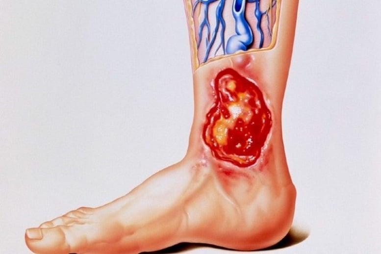 Трофическая язва – современное лечение